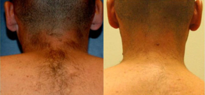 laser-hair-removal-before-after-side-by-