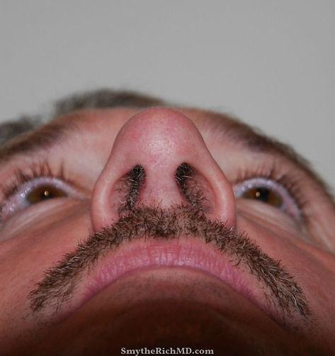 abbott-post-basal-nose.jpg
