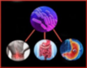 Klebsiella-AS Crohns Stomach Cancer.jpg