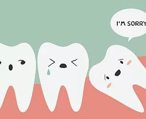 What are wisdom teeth?