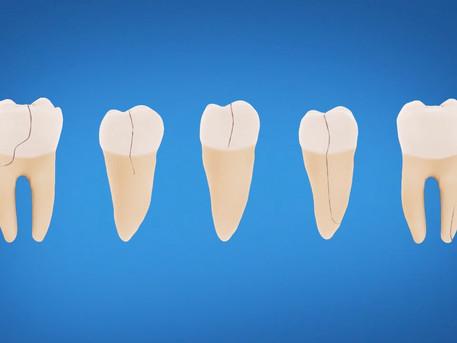 Internal Cracks in Teeth