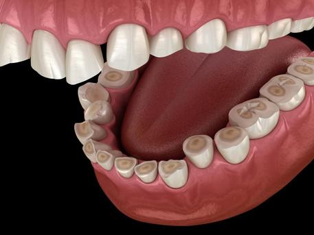 Erosive Tooth Wear Awareness