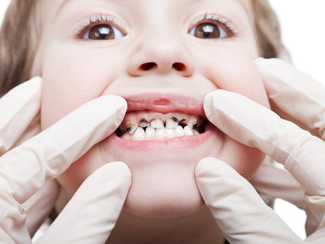 Silver Diamine Fluoride: A Clinical Perspective From a Pediatric Dentist