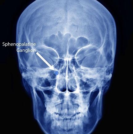 sphenopalatine-ganglion-231x300.jpg
