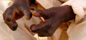 Metro article on leprosy