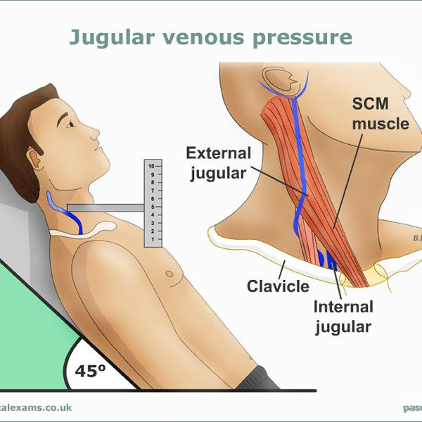 Jugular-Venous-Pressure-web-large800x600