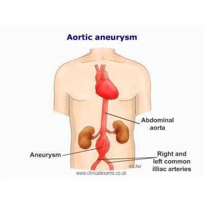 Aortic-Aneurysm-labelsBELtd-1.jpg