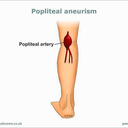 Popliteal-Aneurism-web-large800x600-600x