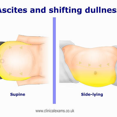 Ascites-and-shifting-dullness-test-BE-60