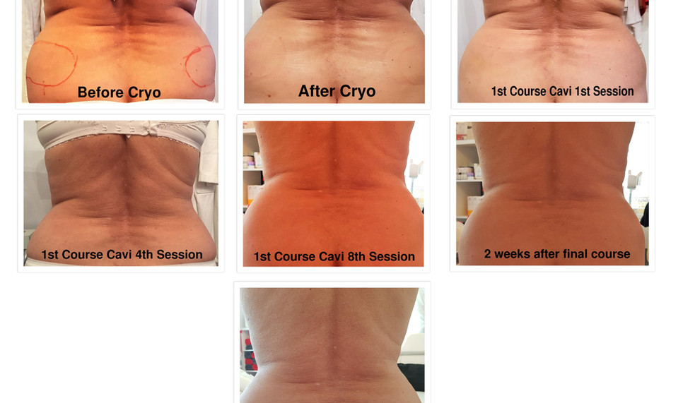 PS 1st to 8th Back Treatment.jpg