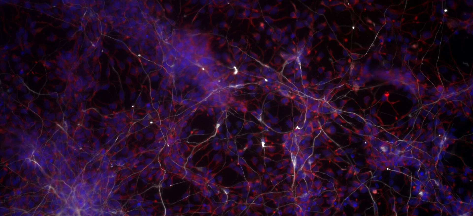 Stem Cells Becoming Neurons