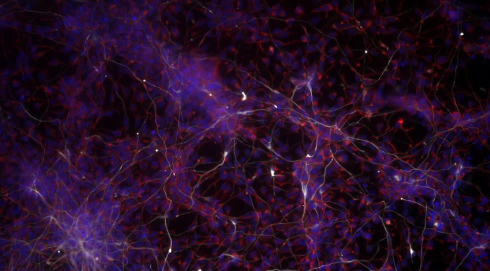 Stem Cells Becoming Neurons