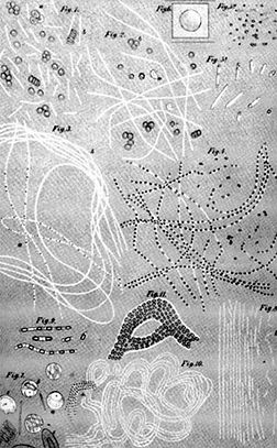 Koch's drawing of theanthrax bacillusat various stages of development. (Reference: Koch R. Die Ätiologie der Milzbrandkrankheit, begründet auf die Entwicklungsgeschichte des Bacillus Anthracis.Beiträge zur Biologie der Pflanzen 1876; 2:277–310.)