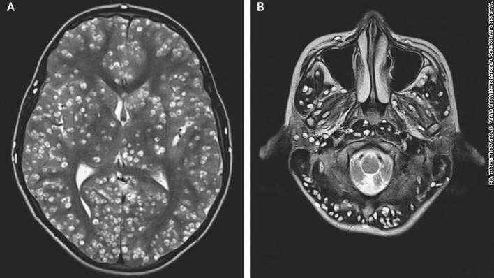 Teen Dies from Larvae Infestation in the Brain