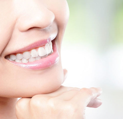 tooth-whitening-2_edited.jpg