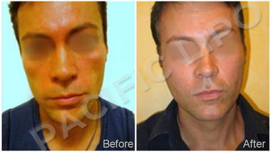 Fat Transfer Facial Rejuvination