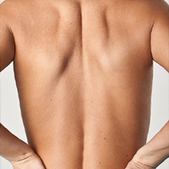 Back and/or Front Bra Rolls Liposculpture