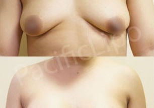 Fat Transfer to Breast   [click on image]