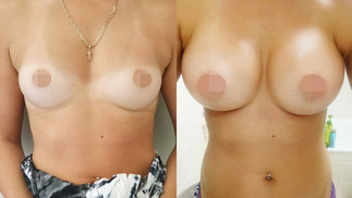 Silicone Implants [Click Image]