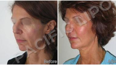 Fat Trasfer Facial Rejuvination