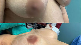 Silicone Implants immediately after!