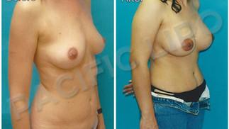 Silicone Implants
