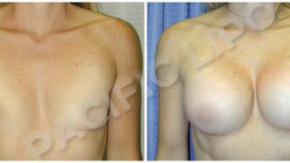 Saline Implants