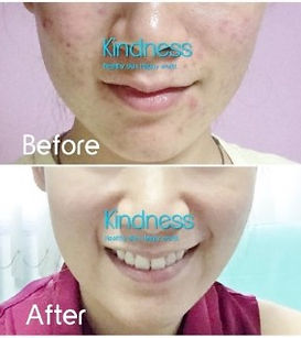 Kindness before after.jpg