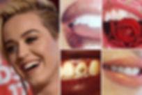 tooth gem3.jpg