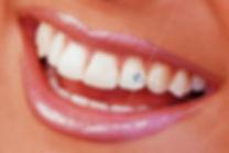 tooth gem2.jpg