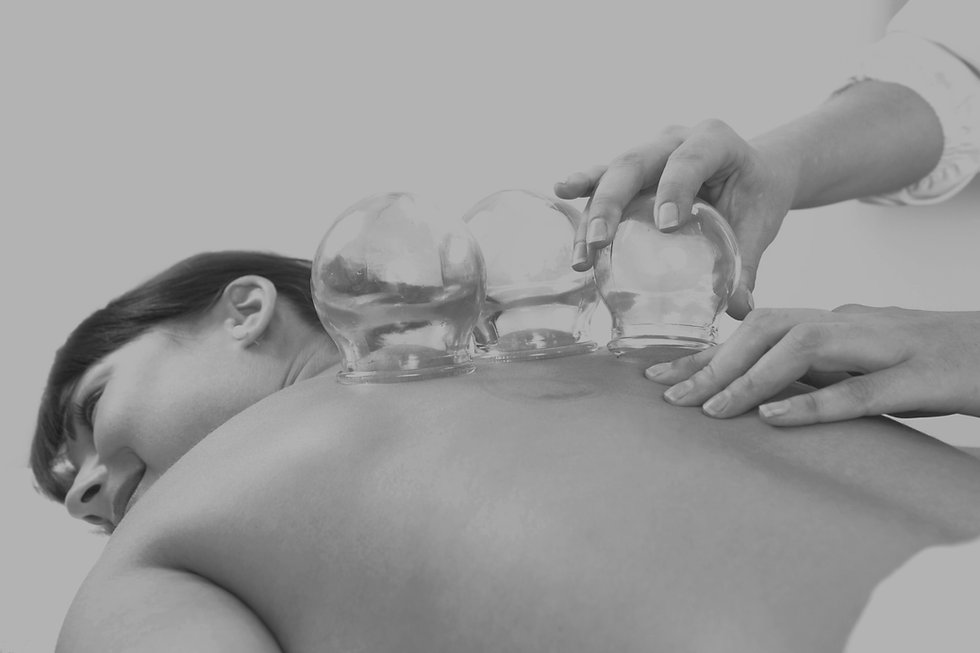 Acupuncture%252520therapist%252520removing%252520a%252520fire%252520cupping%252520glass%252520from%2