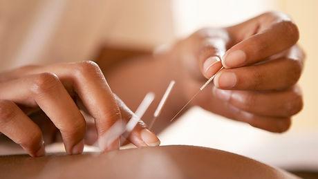 Acupuncture_edited_edited.jpg