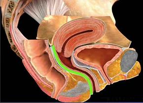vagina tightening