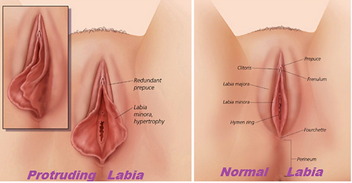 Labiaplasty procedure