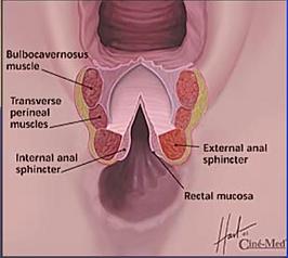 perineoplasty, chicago