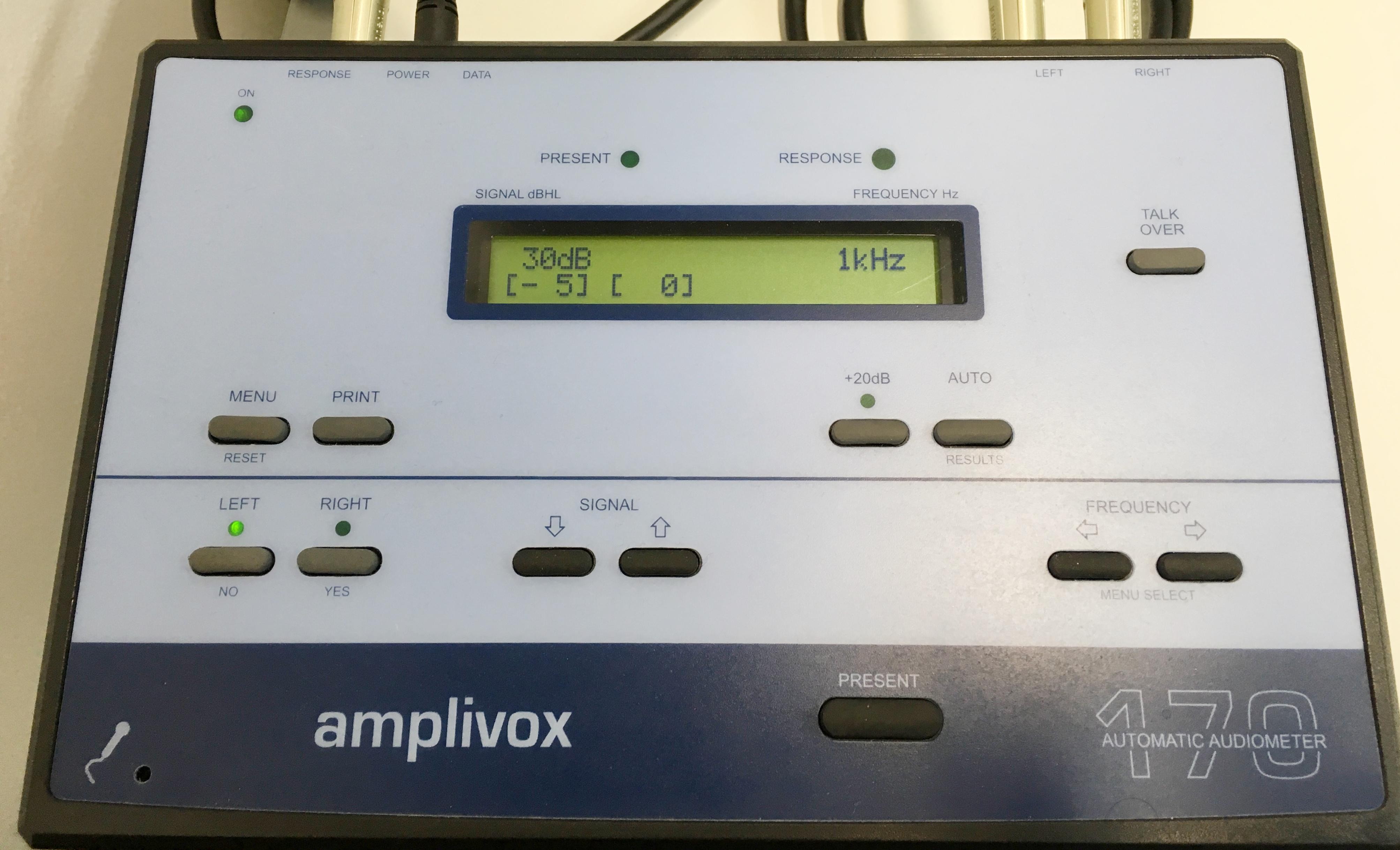 FM Watford Audiogram