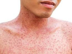 Measles - adult