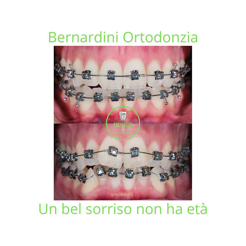 ortodonzia bernardini.png