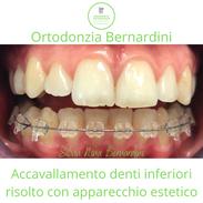 Accavallamento denti inferiori