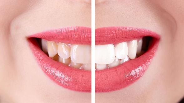 sbiancamento-dentale-800.jpg