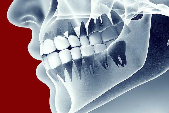 servizio-ortodonzia-prechirurgica-verona