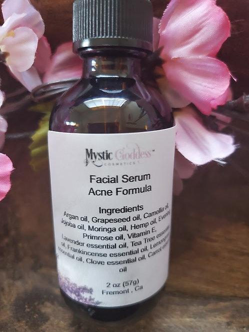 2 oz Acne Face Serum