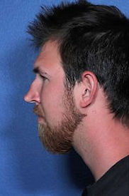 Nasal Surgery Rhinoplasty before and after results