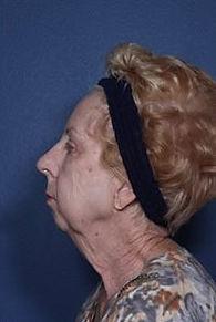 Laser lift anti-aging in Lawton, Oklahoma at Skin Secrets