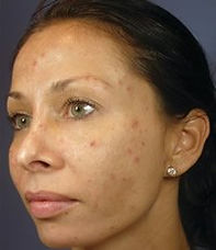 Vi peel before & after pictures in Lawton, Oklahoma at Skin Secrets