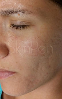 Before & after pics of SkinPen at Skin Secrets Facial Plastic Surgery & Medical Spa