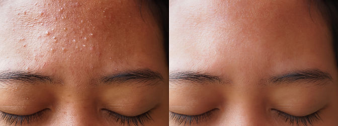 befor and after acne treatment