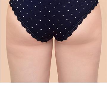 butt after white.jpg
