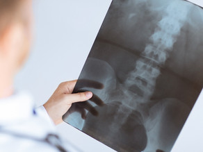 Die Ursachen von Rückenschmerzen
