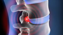 Bandscheibenvorfall: Mikrodiskektomie lindert Ischialgie bei radikulärem Lumbalsyndrom